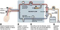 dialysis-diagram